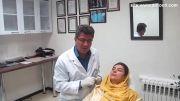 تزریق ژل لب و خط خنده