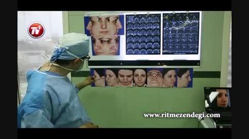 تصاویری از جدیدترین روش عمل جراحی بینی/قسمت اول