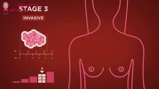 سرطان پستان - قسمت چهاردهم - مراحل سرطان - مرحله 3