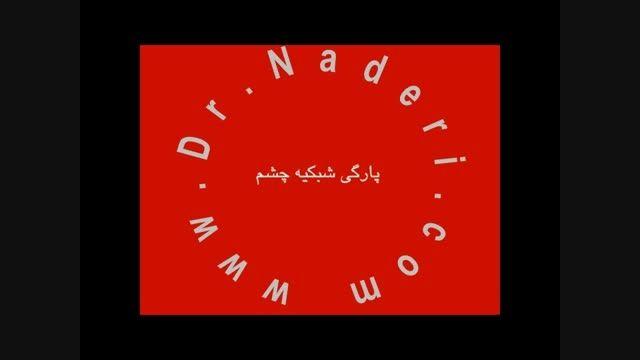پارگی شبکیه Tear - مرکزچشم پزشکی دکتر علیرضا نادری