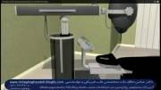 لیزر درمانی پرتوان جهت درمان درد مفاصل،کمردرد وگردن درد