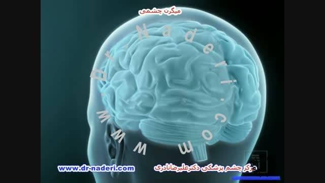 میگرن چشمی - مرکزچشم پزشکی دکتر علیرضا نادری