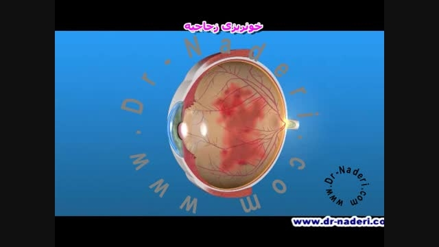 خونریزی زجاجیه-مرکز چشم پزشکی دکتر علیرضا نادری