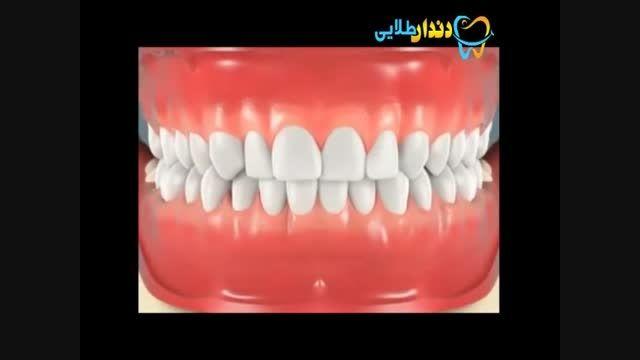 كشیدن دندان عقل نهفته