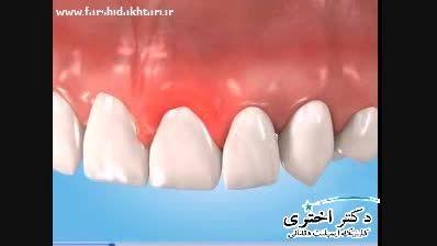 بهداشت ایمپلنت دندان