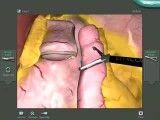 عمل جراحی گوارشی