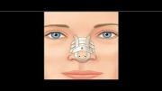 فیلم مراقبت پس از جراحی بینی