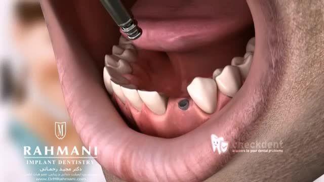 حساسیت به ایمپلنت دندان