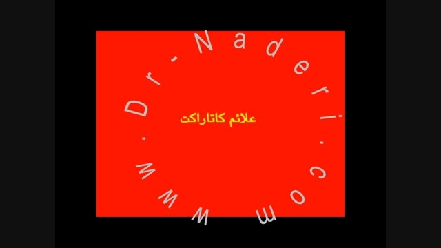 علائم کاتاراکت -سایت چشم پزشکی دکتر علیرضا ناد ری
