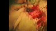 جراحی باز جمجمه