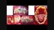 درمان نامرتبی شدید دندان ها با ارتودنسی