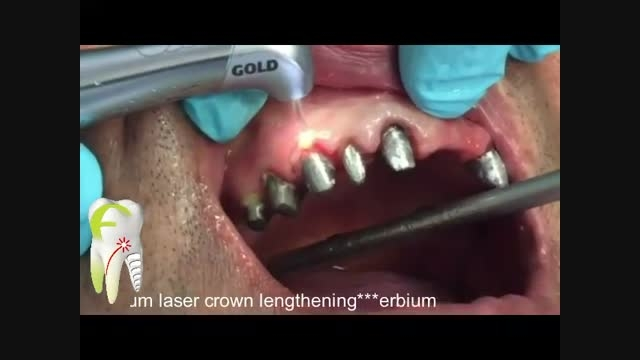 جراحی افزایش طول تاج دندان با لیزر اربیوم