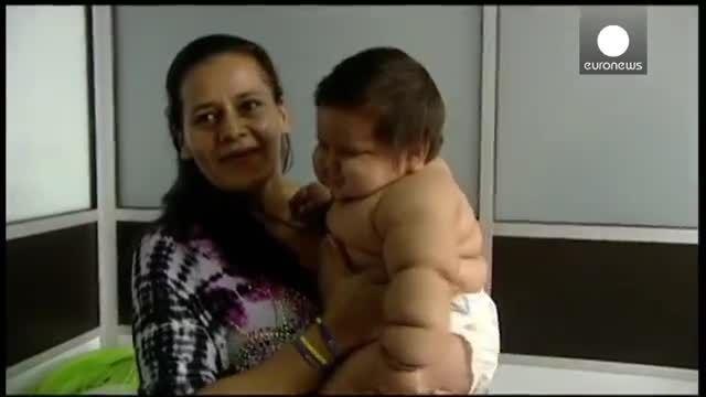 خبر کوتاه* یک پسر بچه هشت ماهه با وزنی بیش از بیست کیلو