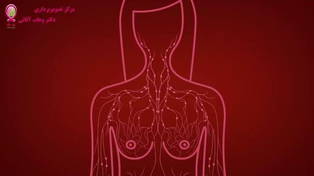 سرطان پستان -قسمت بیست و چهارم -برداشتن غدد لنفاوی