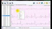 تحلیلHeart Rateدرنرم افزار تحلیل سیگنال هولتر ECG نسخه3