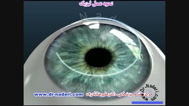 عمل لیزیک- مرکز چشم پزشکی دکتر علیرضا نادری