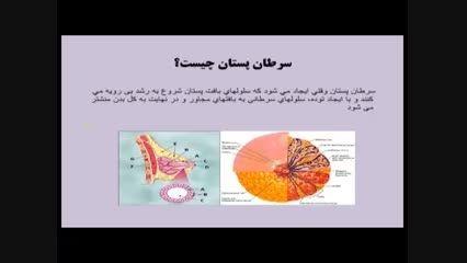 پیشگیری از سرطان پستان 1 -موسسه خیریه سرطان