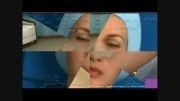 فیلم انیمیشن مراقبت های پس از جراحی بینی