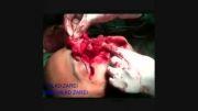 جراحی ترمیمی صورت