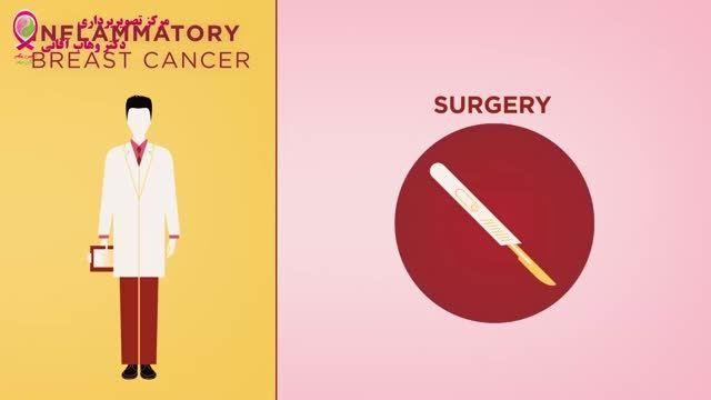 سرطان پستان - قسمت هفدهم - سرطان پستان التهابی