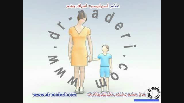 علائم استرابیسم - مرکز چشم پزشکی دکتر علیرضا نادری
