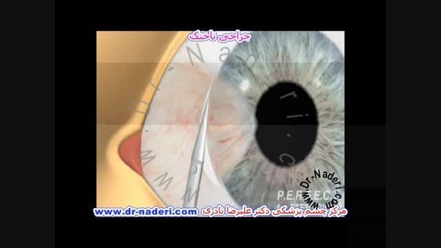 جراحی ناخنک - مرکز چشم پزشکی دکتر علیرضا نادری