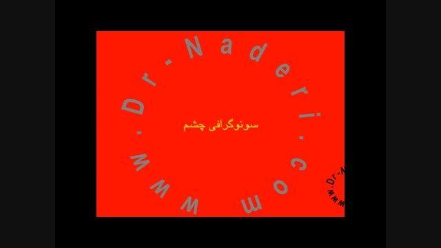 سونوگرافی شبکیه - مرکزچشم پزشکی دکتر علیرضا نادری