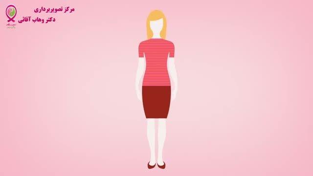 سرطان پستان - قسمت بیست و دوم - ترمیم پستان