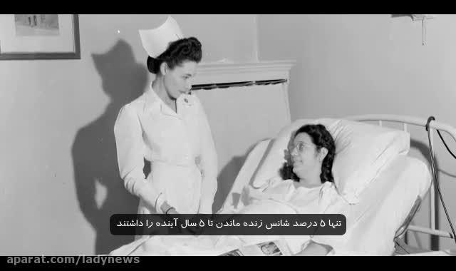 درمان لوپوس