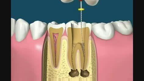 عصب كشى و روكش كردن دندان