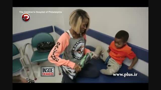 پیوند دو دست پسر بچه 8 ساله توسط 40 پزشک