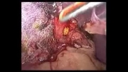 کله سیستکتومی لاپاروسکوپیک با اکسپلور کلدوک و خارج کردن سنگ ها(دکتر نظریShahramnazari.com)