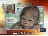 زن  30 ساله نوزاد نما!