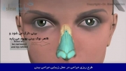 انیمیشن عمل جراحی پلاستیک بینی