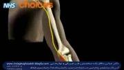 گیرافتادگی وچسبندگی عصب مچ دست(سندرم تونل کارپ یامچ دست)