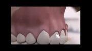 فیستول دندان