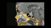 عمل جراحی برداشتن تومور هیپوفیز