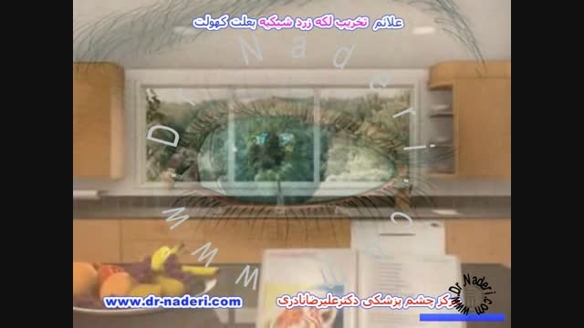 علائم تخریب سنی لکه زرد شبکیه-مرکزچشم پزشکی دکترنادری