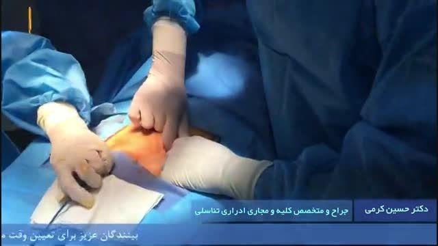 عمل جراحی باز واریکوسل