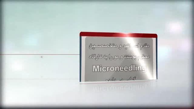 درمان استریا - ترک های پوستی به روش میکرونیدلینگ