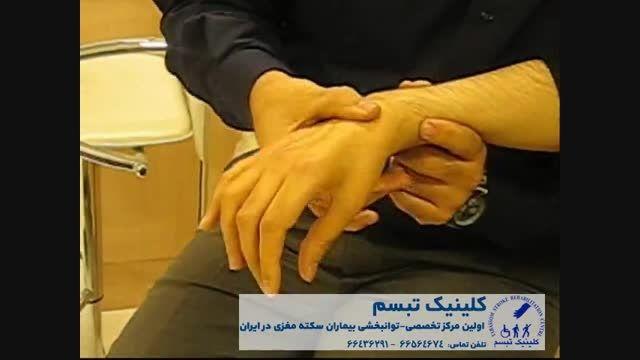 توانبخشی بیماران سکته مغزی-کلینیک تبسم-تزریق دیسپورت