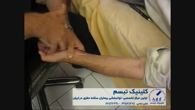 توانبخشی بیماران سکته مغزی - کلینیک تبسم - دکتر کاظمی