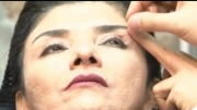 جراحی زیبایی پلک و مراقبت های بعد از آن