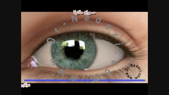 سوراخ ماکولا ی شبکیه - مرکزچشم پزشکی دکتر علیرضا نادری