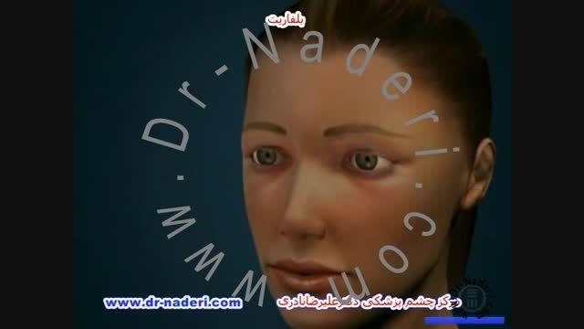 بلفات یا التهاب پلک - مرکزچشم پزشکی دکتر علیرضا نادری