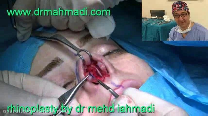 عمل زیبایی بینی(rhinoplasty)توسط متخصص گوش وحلق بینی15