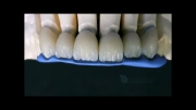 روکش دندان چیست؟ دندانپزشکی آبان