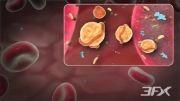 انسداد سرخرگ کرونری در بیماران دیابتی چگونه است ؟