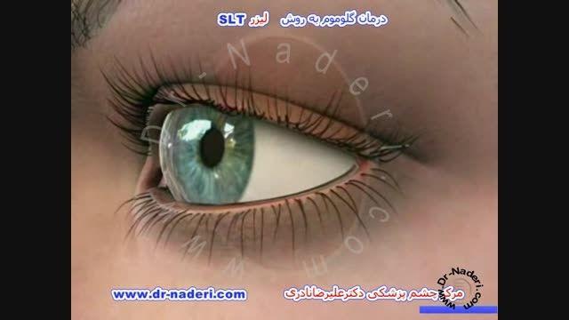 درمان گلوکوم با لیزر آرگون -مرکز چشم پزشکی دکتر  نادری
