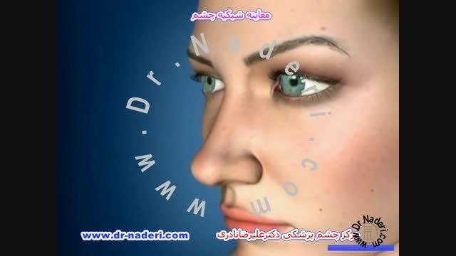 معاینه شبکیه - مرکزچشم پزشکی دکتر علیرضا نادری
